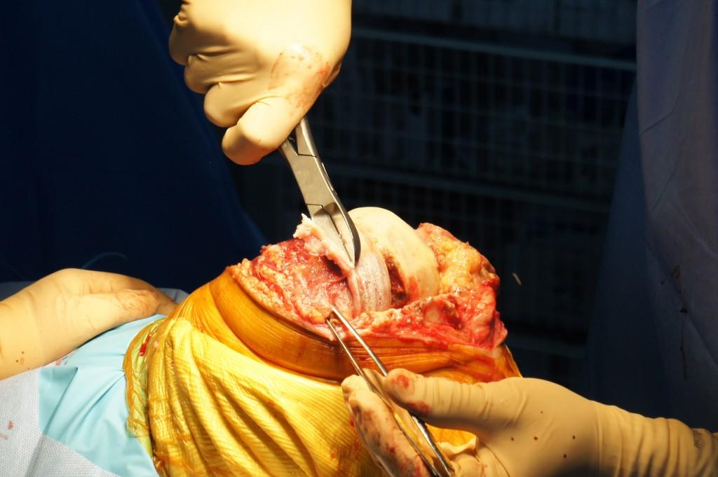 Résection Ostéophytes